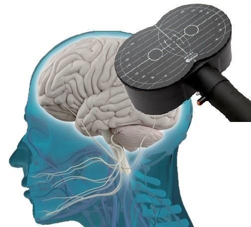 درمان اعتیاد با تحریک مغناطیسی مغز